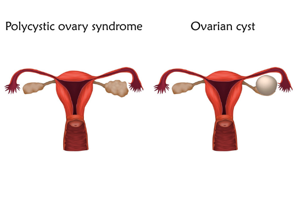 diagram of the uterus showing polycystic ovarian syndrome compared to a single ovarian cyst